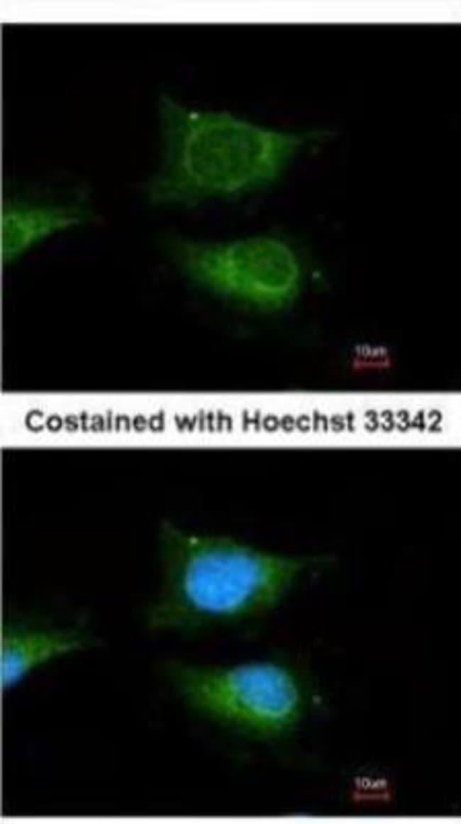 Glucosylceramidase/GBA Rabbit anti-Human, Mouse, Zebrafish, Polyclonal,