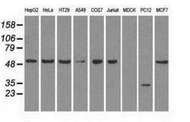 anti-Glut5, Clone: 9F3, Novus Biologicals 0.1mL; Unlabeled:Life Sciences
