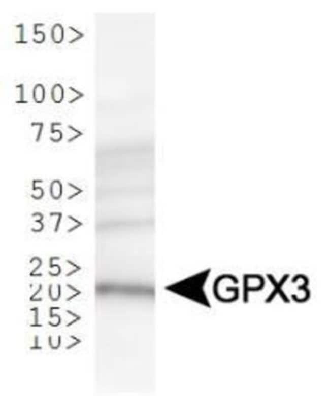 anti-Glutathione Peroxidase 3/GPX3, Polyclonal, Novus Biologicals:Antibodies:Primary