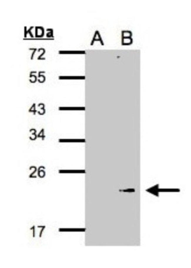 anti-Glutathione Peroxidase 7, Polyclonal, Novus Biologicals 0.1mL; Unlabeled:Antibodies