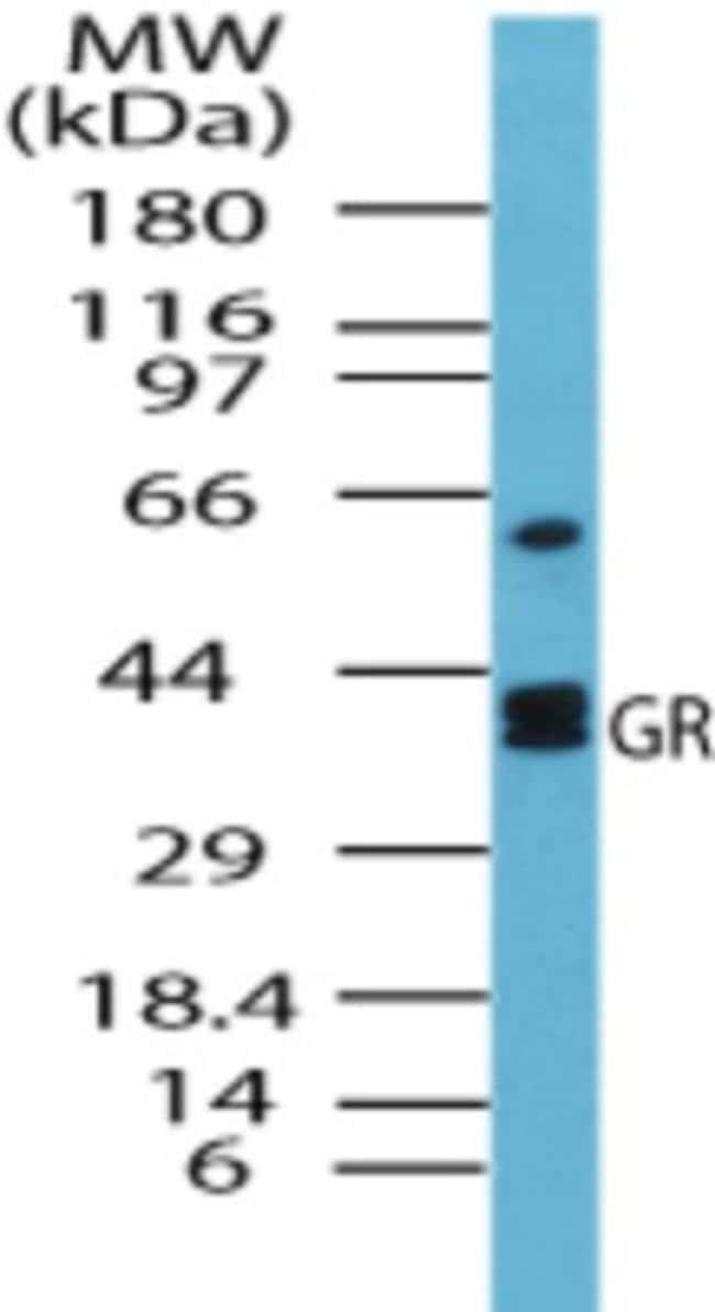 anti-Glutathione Reductase, Polyclonal, Novus Biologicals:Antibodies:Primary
