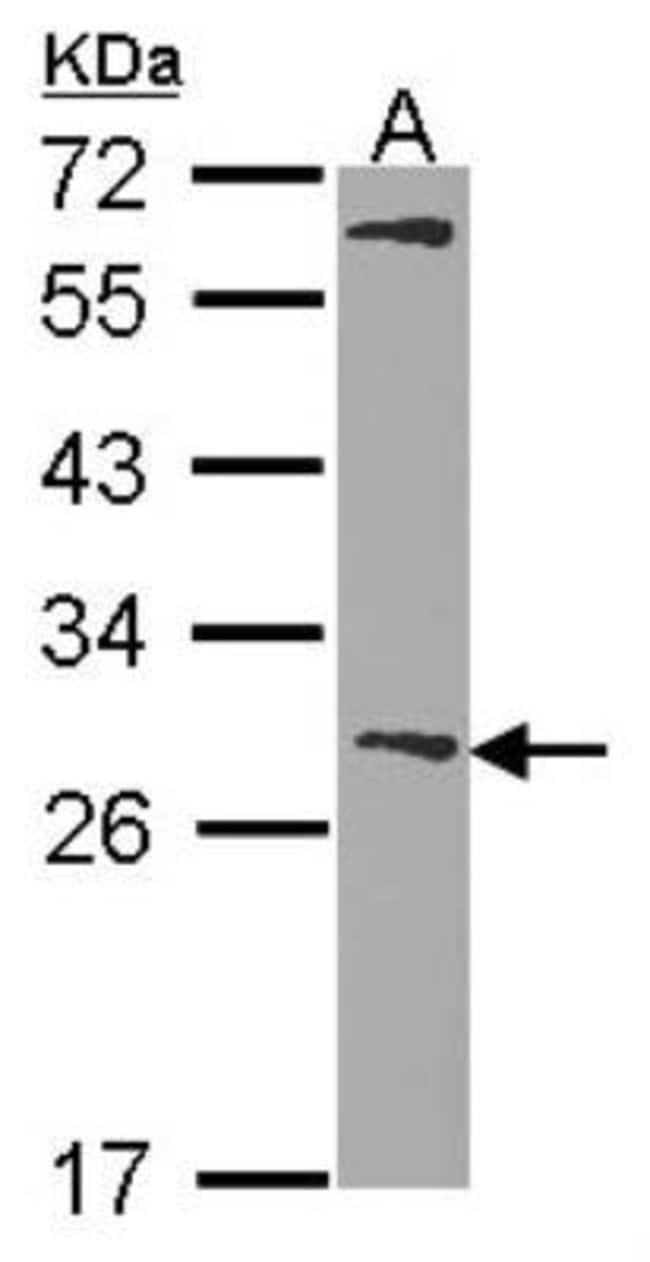 anti-Glutathione S-Transferase mu 1/GSTM1, Polyclonal, Novus Biologicals
