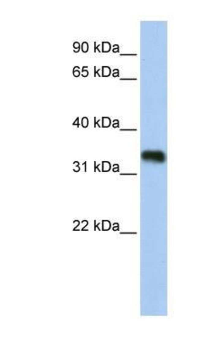GLYATL3 Rabbit anti-Human, Polyclonal, Novus Biologicals 20µL; Unlabeled