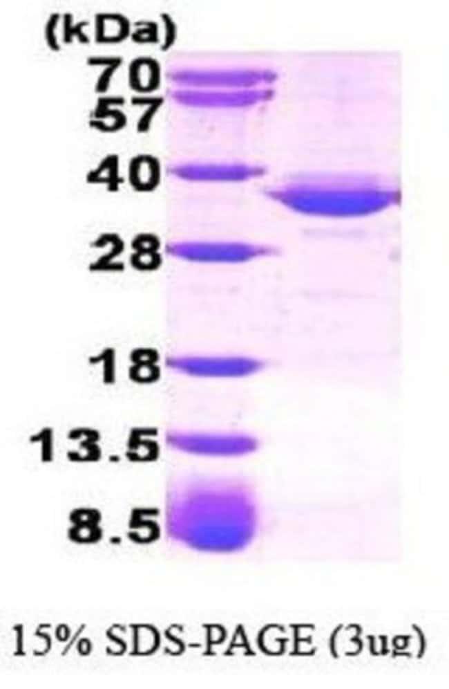 Novus BiologicalsHuman Glycerol 3 Phosphate Dehydrogenase Recombinant Protein