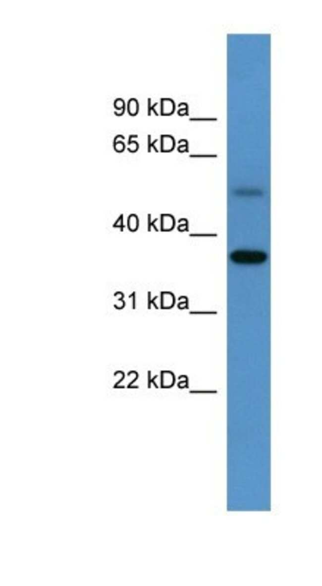 Glycogenin 1 Rabbit anti-Mouse, Polyclonal, Novus Biologicals 20µL;