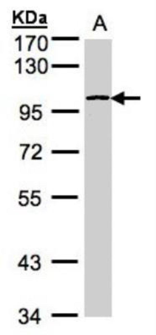 Glycogen Phosphorylase BB/GPBB Rabbit anti-Human, Mouse, Rat, Polyclonal,