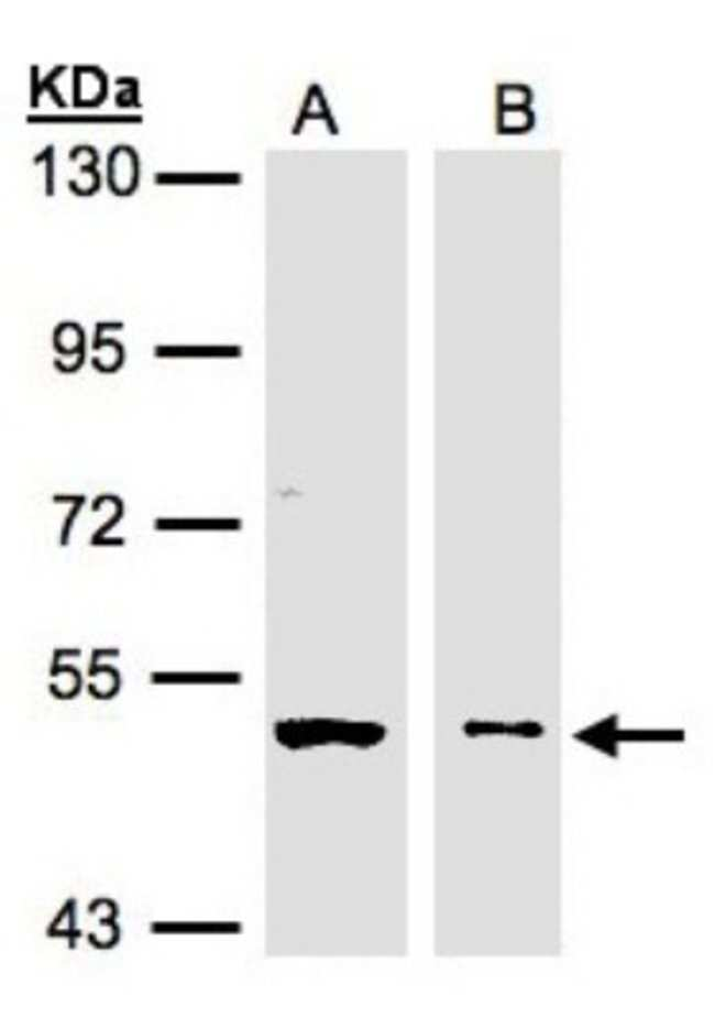 anti-GLYCTK, Polyclonal, Novus Biologicals 0.1mL; Unlabeled:Life Sciences