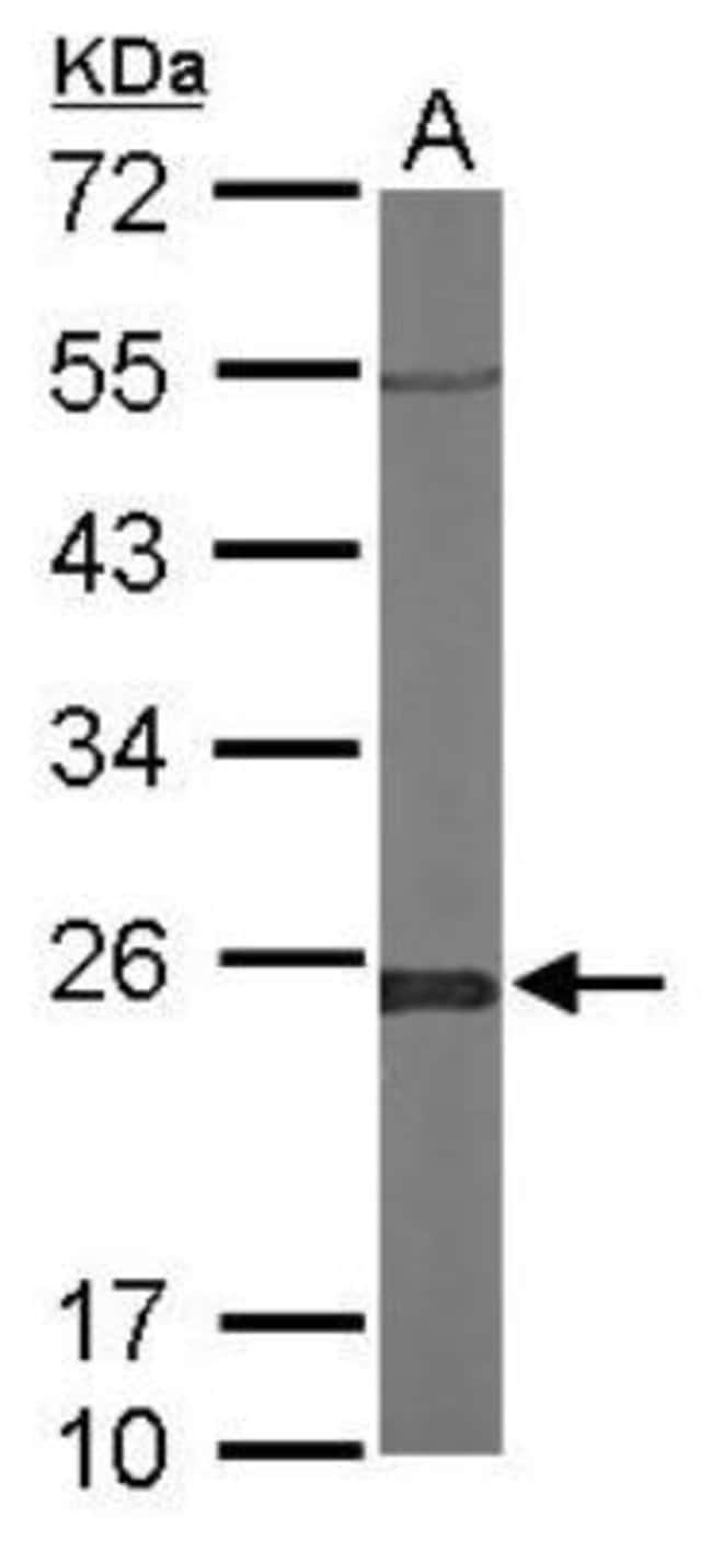anti-Glyoxalase I, Polyclonal, Novus Biologicals 0.1mg; Unlabeled:Life