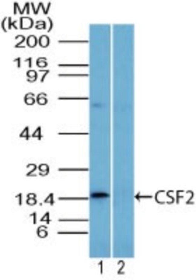 GM-CSF Rabbit anti-Human, Rat, Polyclonal, Novus Biologicals:Antibodies:Primary