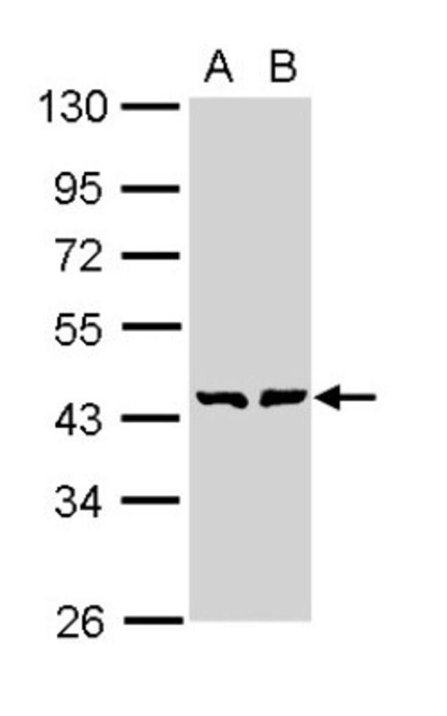 anti-GMDS, Polyclonal, Novus Biologicals 0.1mg; Unlabeled:Antibodies