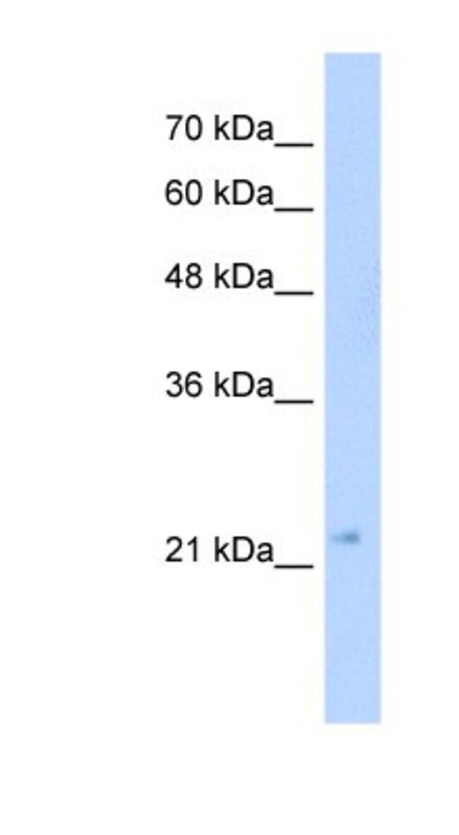 GMPR2 Rabbit anti-Human, Polyclonal, Novus Biologicals 20µL; Unlabeled
