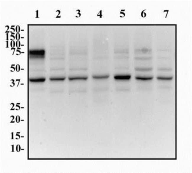 anti-GOLM1, Polyclonal, Novus Biologicals 0.025mL; Unlabeled:Life Sciences