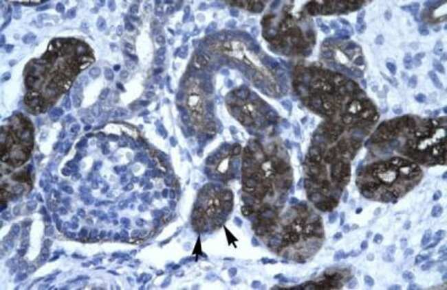 GPBP Rabbit anti-Human, Polyclonal, Novus Biologicals 20µL; Unlabeled