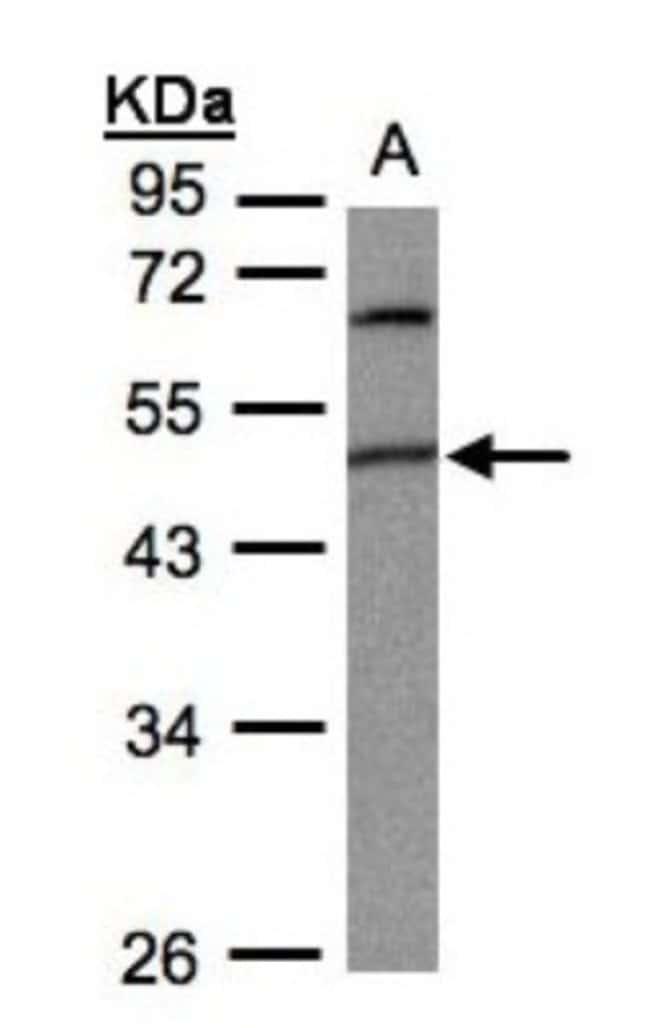 anti-GPI8, Polyclonal, Novus Biologicals 0.1mL; Unlabeled:Life Sciences