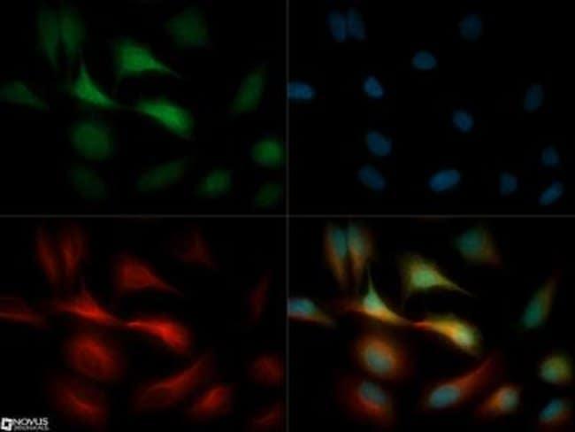 anti-GPIHBP1, Polyclonal, Novus Biologicals:Antibodies:Primary Antibodies