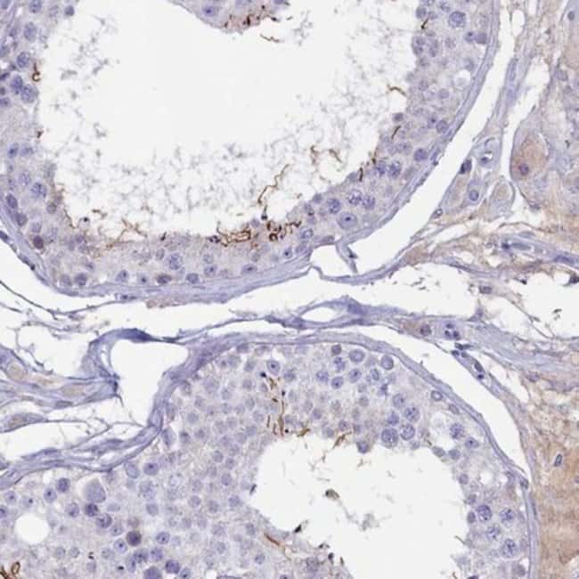 anti-GPR123, Polyclonal, Novus Biologicals 0.1mL; Unlabeled:Life Sciences