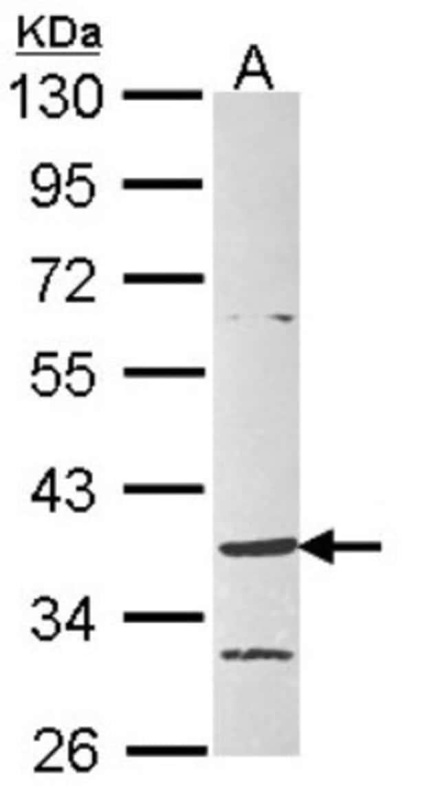 anti-GPR4, Polyclonal, Novus Biologicals 0.1mL; Unlabeled:Life Sciences