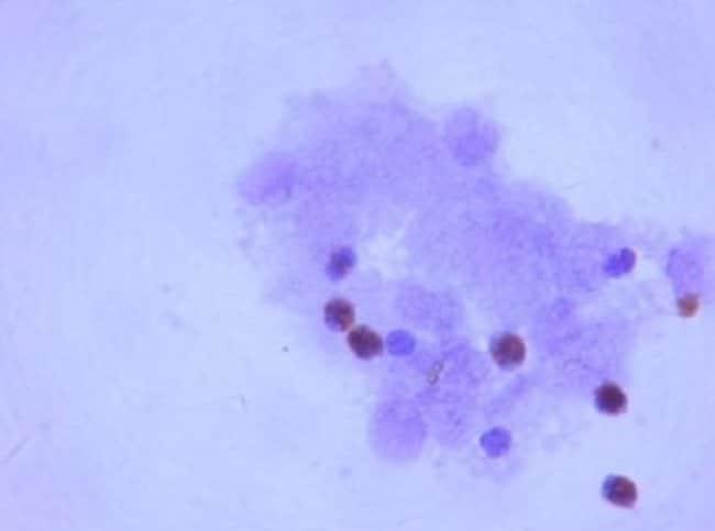anti-Lgr5/GPR49, Polyclonal, Novus Biologicals:Antibodies:Primary Antibodies