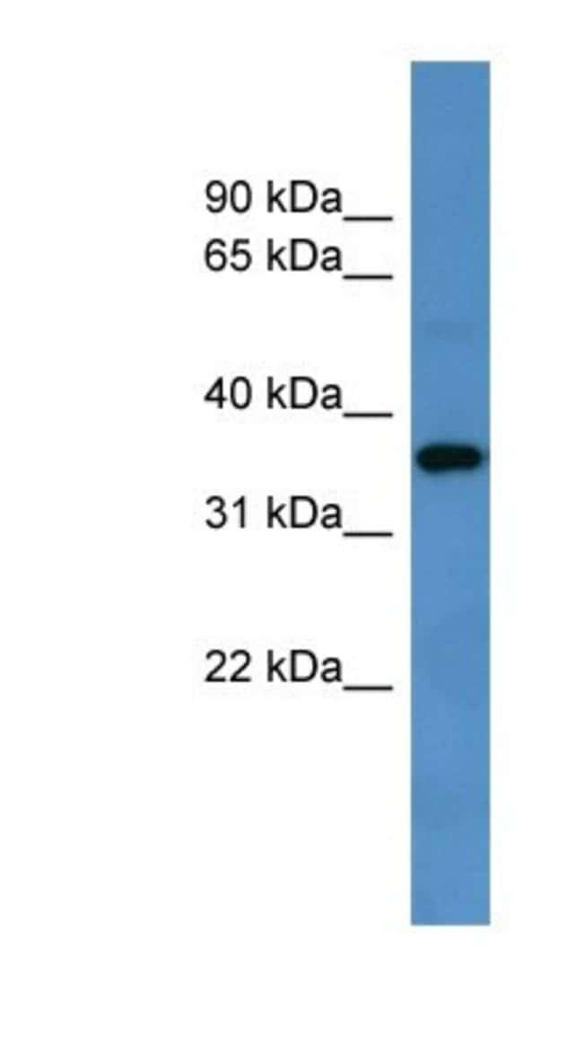 GPR88 Rabbit anti-Rat, Polyclonal, Novus Biologicals 100µL; Unlabeled:Life