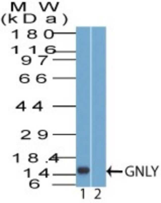 anti-Granulysin, Polyclonal, Novus Biologicals:Antibodies:Primary Antibodies