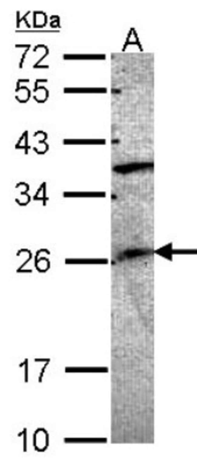 anti-GRAP, Polyclonal, Novus Biologicals 0.1mg; Unlabeled:Life Sciences