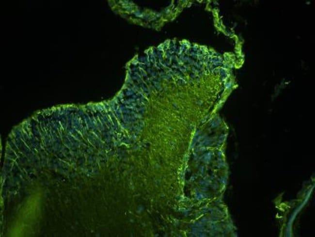 anti-GRID2, Polyclonal, Novus Biologicals 0.1mL; Unlabeled:Life Sciences