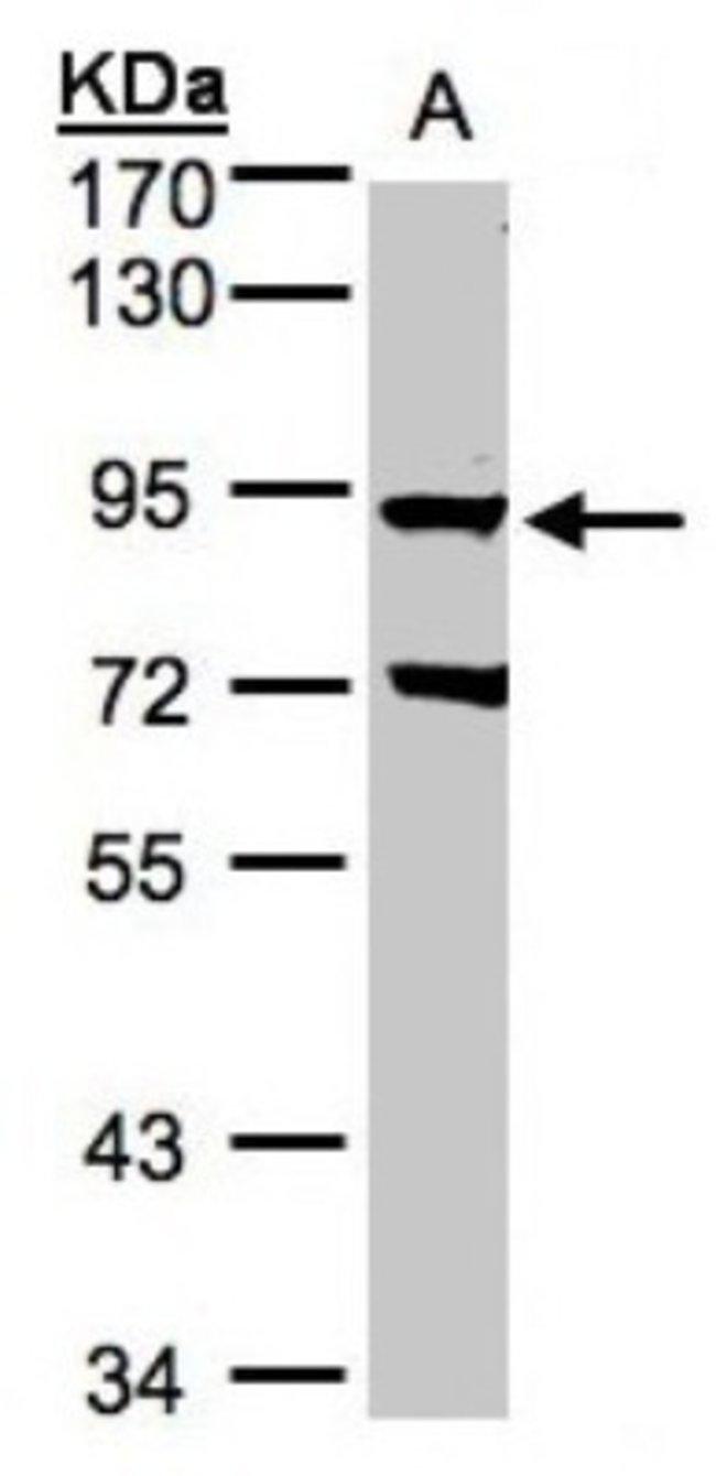 anti-GRK2, Polyclonal, Novus Biologicals 0.1mL; Unlabeled:Life Sciences