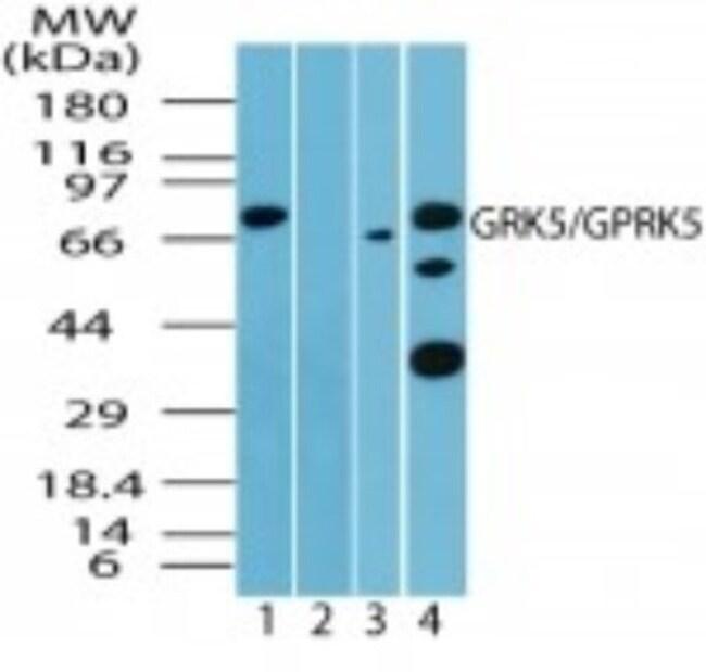 anti-GRK5, Polyclonal, Novus Biologicals:Antibodies:Primary Antibodies