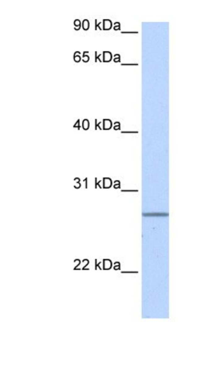 GRPEL2 Rabbit anti-Human, Polyclonal, Novus Biologicals 100µL; Unlabeled:Life