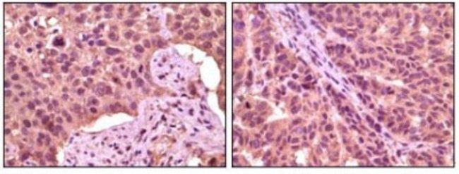anti-GSK-3 alpha, Clone: 6G2F1, Novus Biologicals 0.1mL; Unlabeled:Life