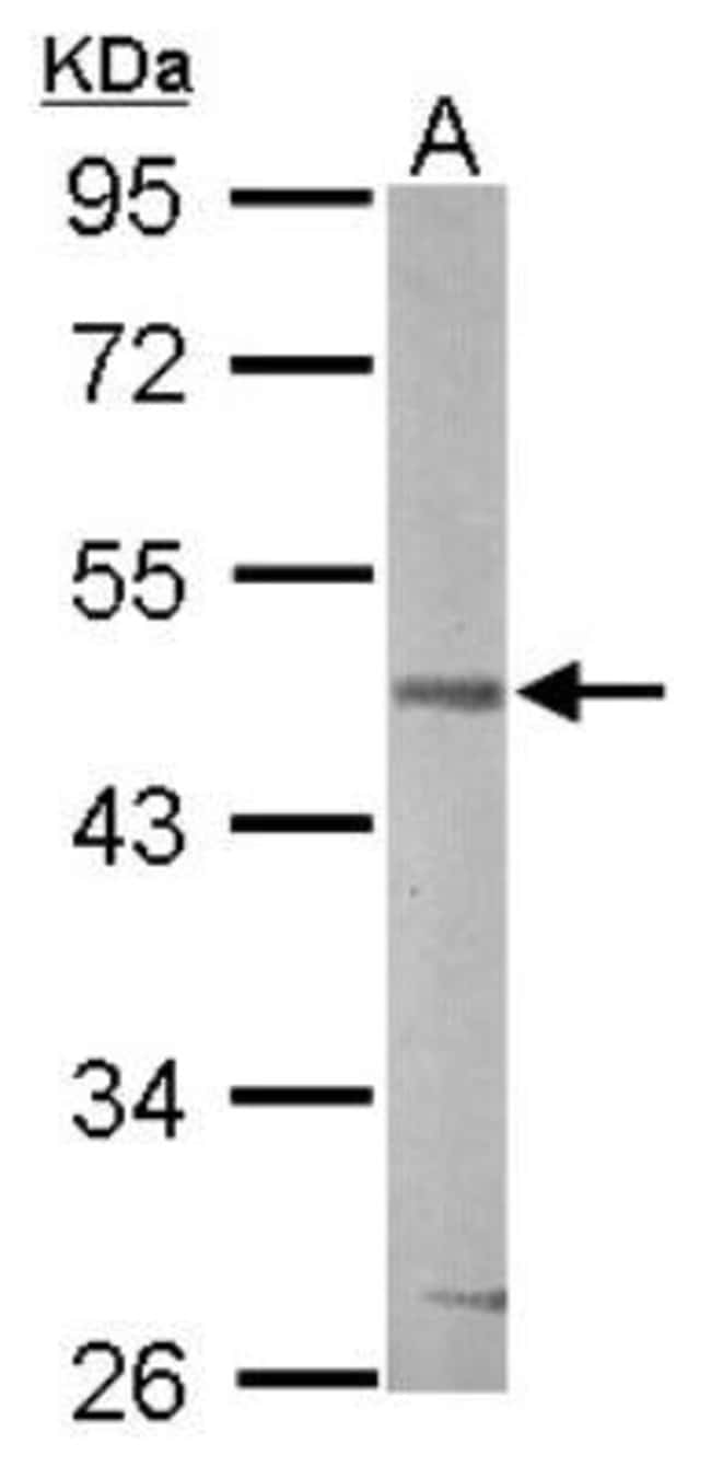 anti-GSK-3 beta, Polyclonal, Novus Biologicals 0.1mg; Unlabeled:Life Sciences