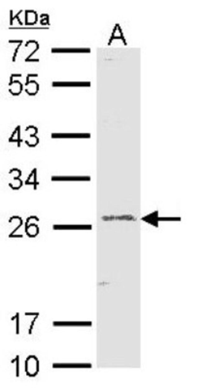 anti-GSTA1, Polyclonal, Novus Biologicals 0.1mg; Unlabeled:Antibodies