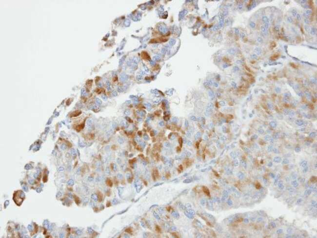 anti-GSTO1, Polyclonal, Novus Biologicals 0.1mL; Unlabeled:Antibodies