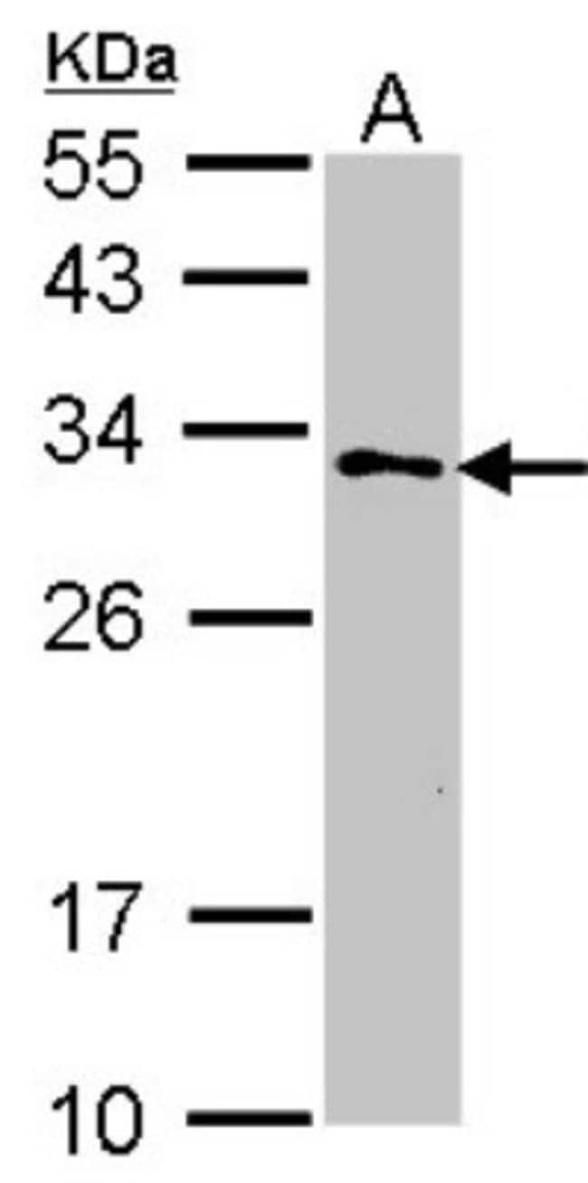 anti-GSTZ1, Polyclonal, Novus Biologicals 0.1mL; Unlabeled:Antibodies