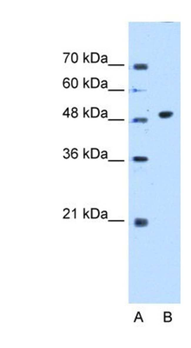 GTDC1 Rabbit anti-Human, Polyclonal, Novus Biologicals 20µL; Unlabeled