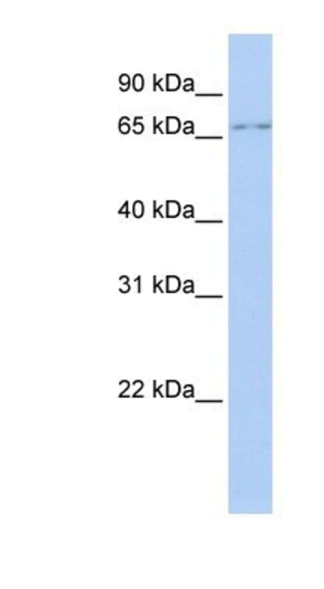 GTPBP4 Rabbit anti-Human, Polyclonal, Novus Biologicals 20µL; Unlabeled