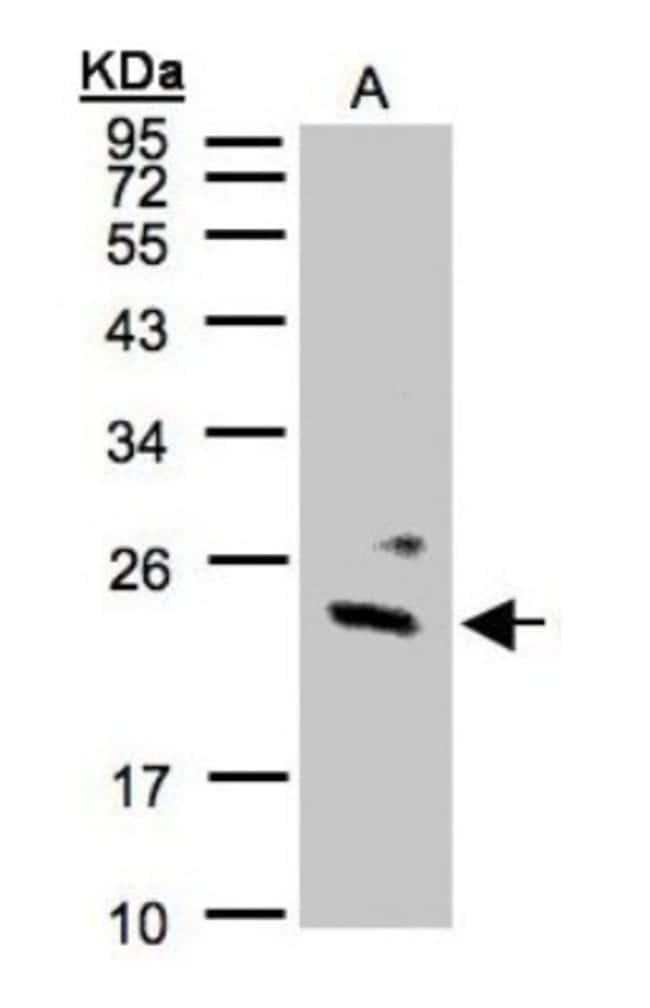 anti-Guanylate kinase, Polyclonal, Novus Biologicals 0.1mg; Unlabeled:Life
