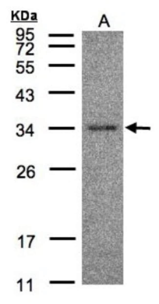 anti-HAAO, Polyclonal, Novus Biologicals 0.1mg; Unlabeled:Antibodies