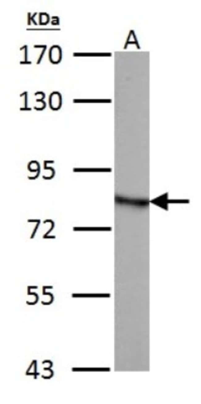 anti-HADHA, Polyclonal, Novus Biologicals 0.1mL; Unlabeled:Life Sciences