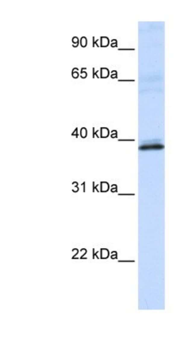 HAO2 Rabbit anti-Human, Polyclonal, Novus Biologicals 20µL; Unlabeled