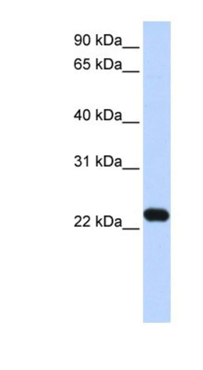 anti-HBXIP, Polyclonal, Novus Biologicals 0.05mg; Unlabeled:Life Sciences