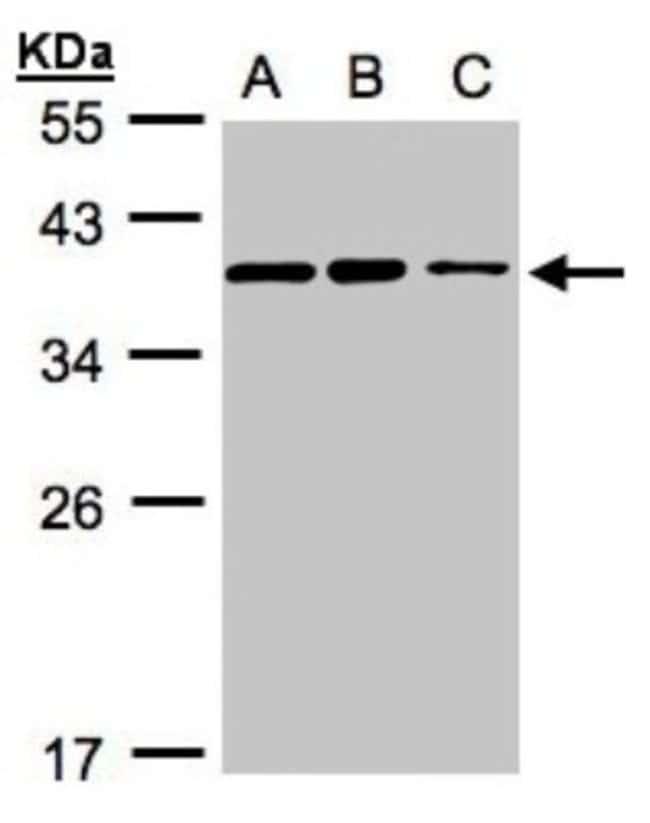 anti-HCA59, Polyclonal, Novus Biologicals 0.1mg; Unlabeled:Life Sciences