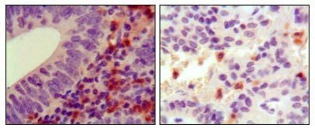 anti-Hck, Clone: 3D12E10, Novus Biologicals 0.1mL; Unlabeled:Life Sciences