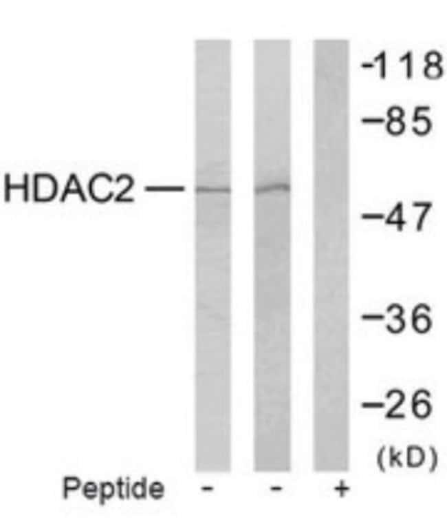 anti-Histone Deacetylase 2/HDAC2, Polyclonal, Novus Biologicals:Antibodies:Primary