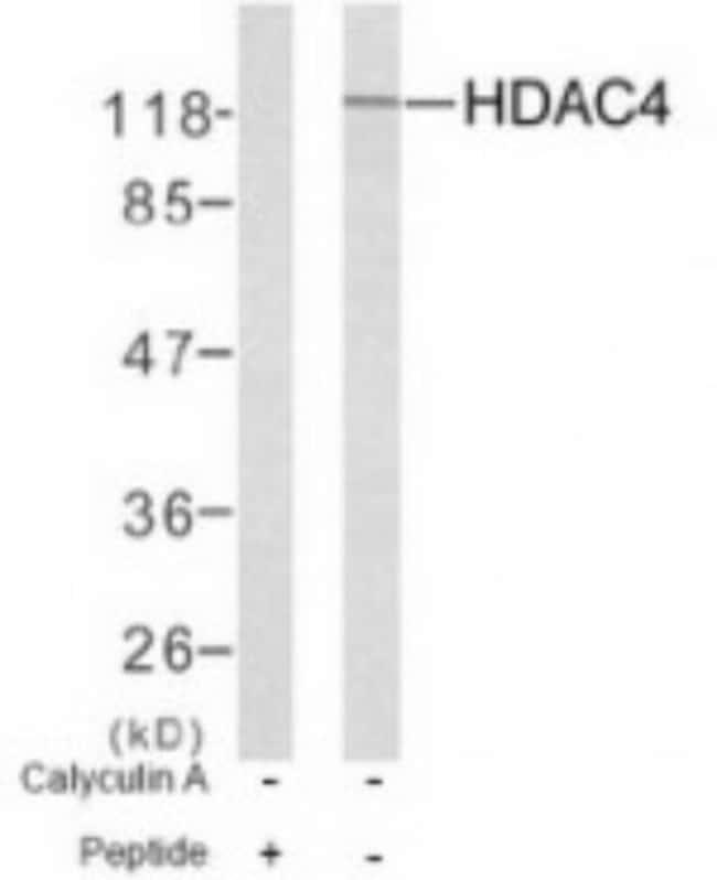 anti-Histone Deacetylase 4/HDAC4, Polyclonal, Novus Biologicals:Antibodies:Primary
