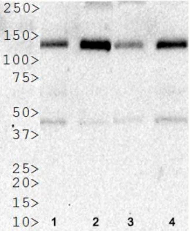 anti-HDAC5, Polyclonal, Novus Biologicals:Antibodies:Primary Antibodies