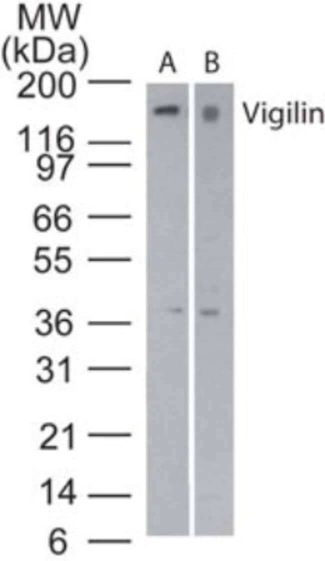 anti-HDLBP, Polyclonal, Novus Biologicals:Antibodies:Primary Antibodies