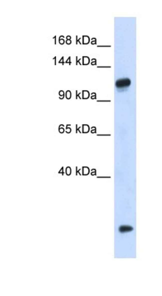 HEATR4 Rabbit anti-Human, Polyclonal, Novus Biologicals 20µL; Unlabeled