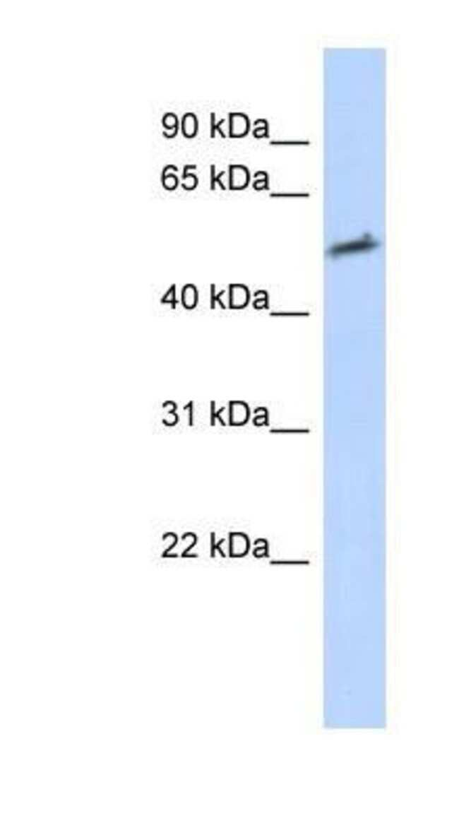 Helios Rabbit anti-Human, Polyclonal, Novus Biologicals 20µL; Unlabeled