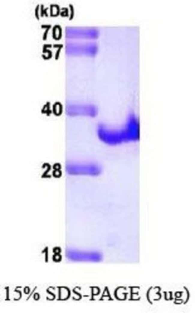 Novus Biologicals Human Hepatitis C Virus Protein 0.1mg; Unlabeled:Life